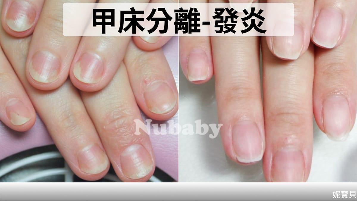 發炎過敏的皮膚問題而導致 萎縮 剝離 產生的原因與處理