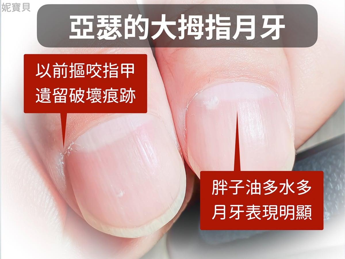 指甲月牙 是什麼?月牙和指甲健康的關係