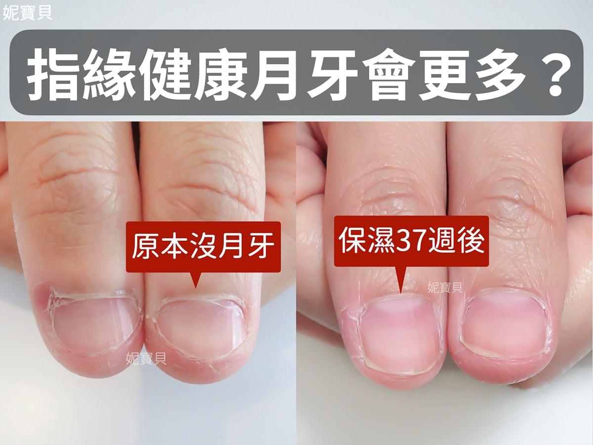 指緣健康那月牙會更多嗎