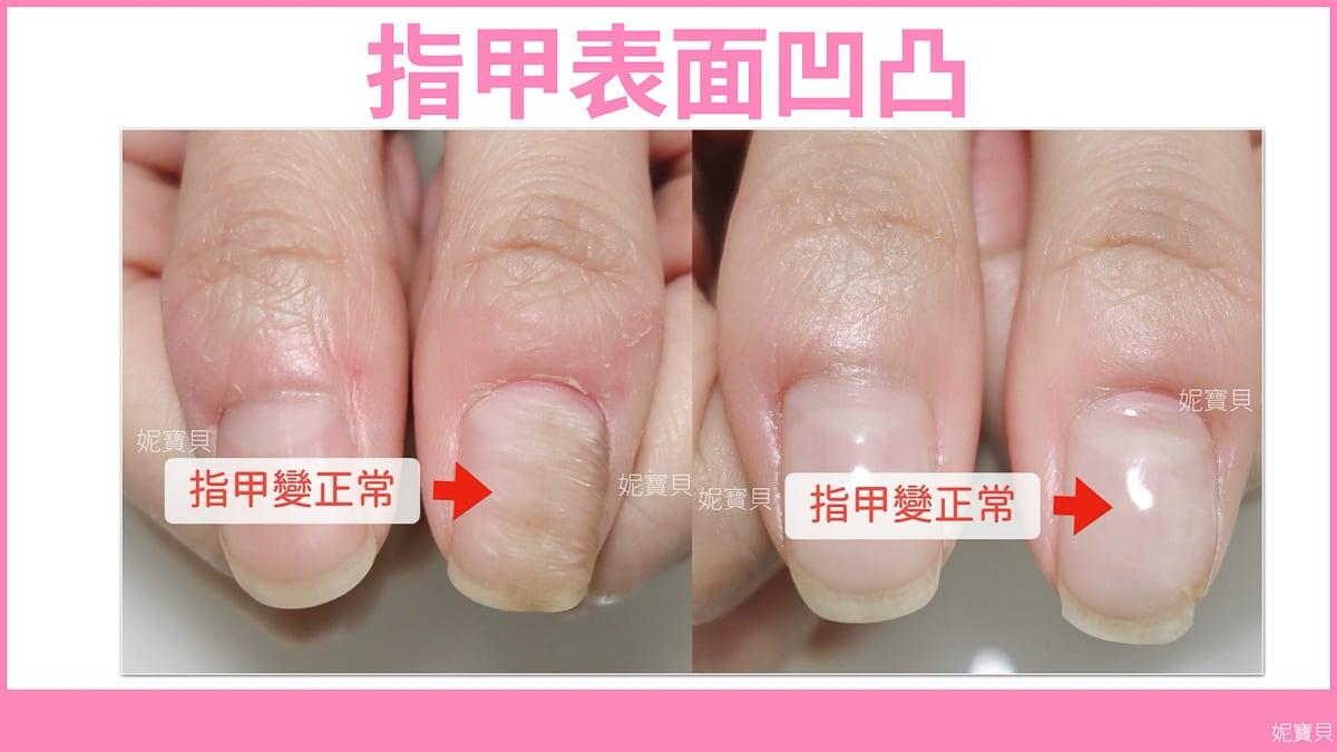 指甲表面凹凸