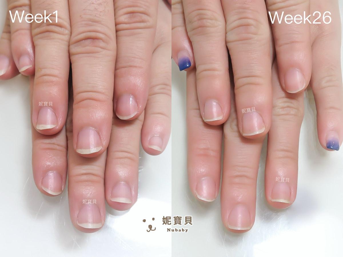 指甲矯正 桃園 甲床變長 26週的指甲矯正