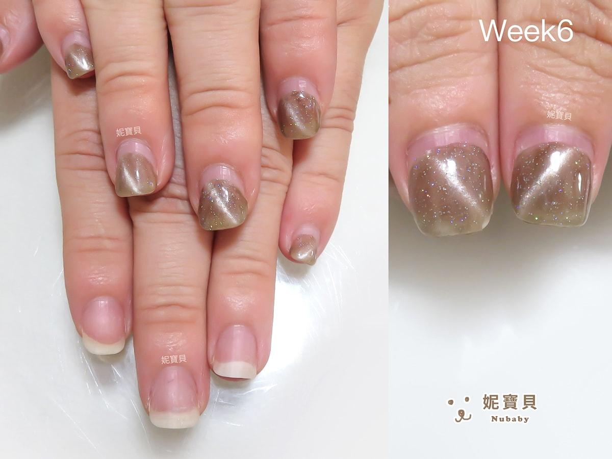 桃園女孩 甲床變長 26週的指甲矯正
