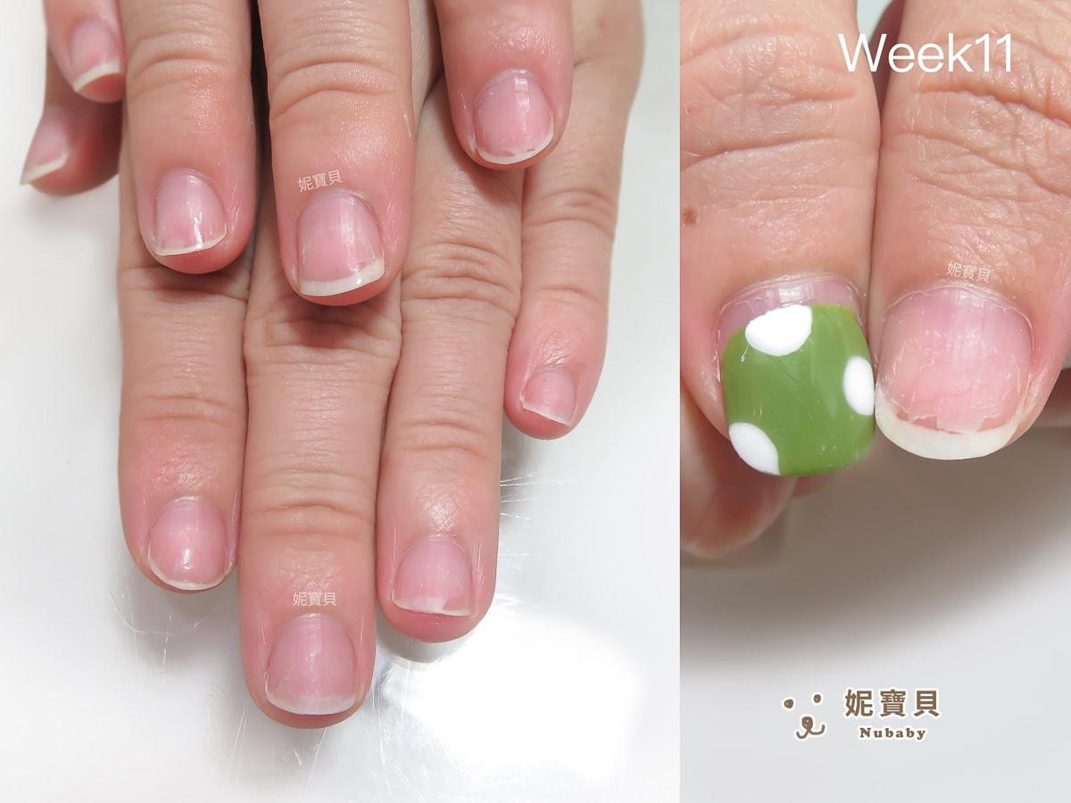 26週的指甲矯正