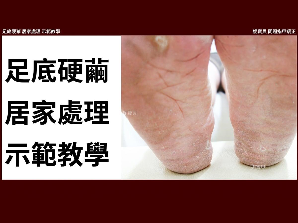 腳底硬繭 在家自己處理 工具選擇與示範