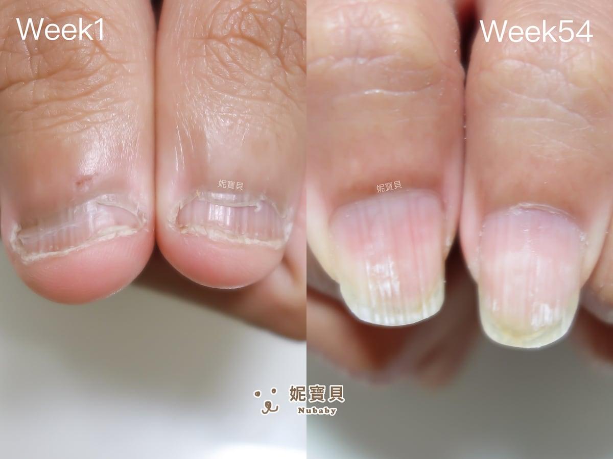 指甲矯正 台中 工程師的超短指甲變長