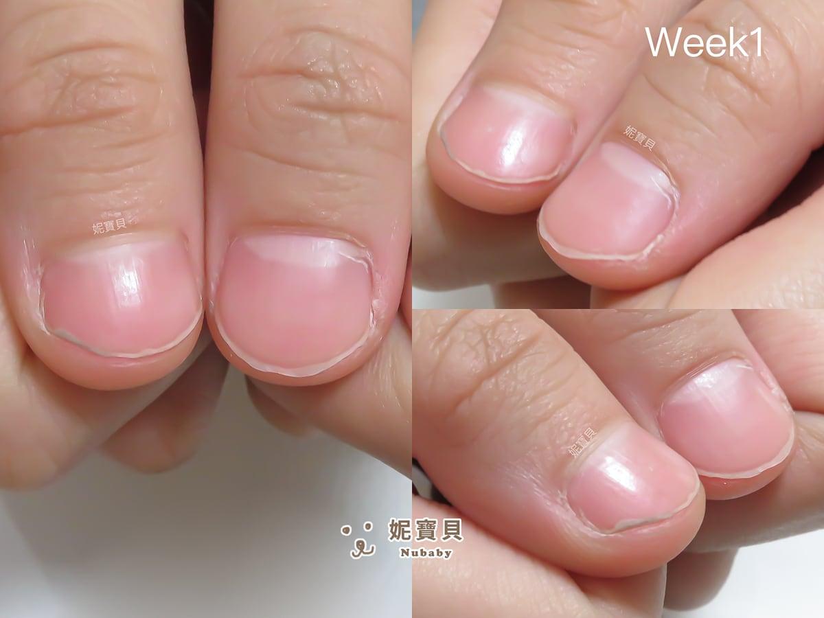 指甲矯正 高雄 指甲變美的女大學生
