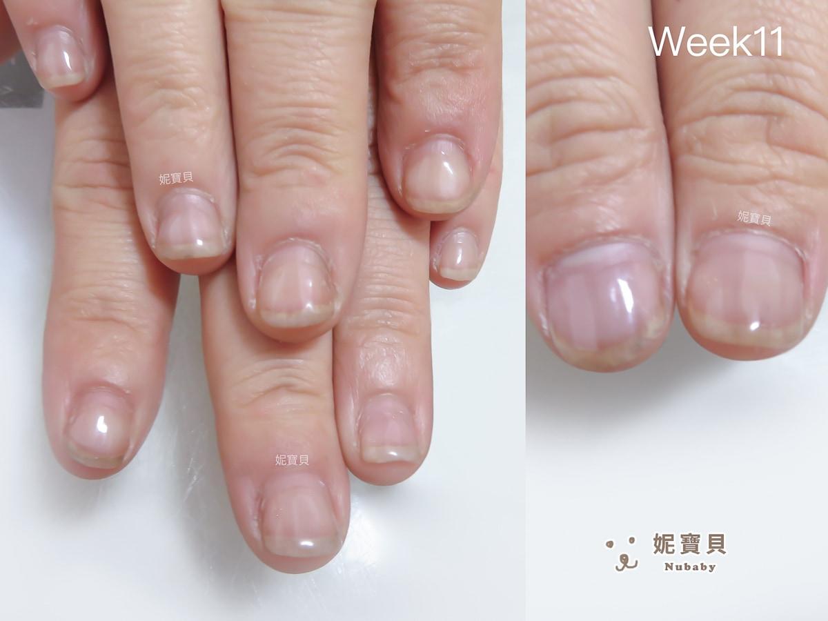指甲矯正作業員操勞雙手 變超美指甲