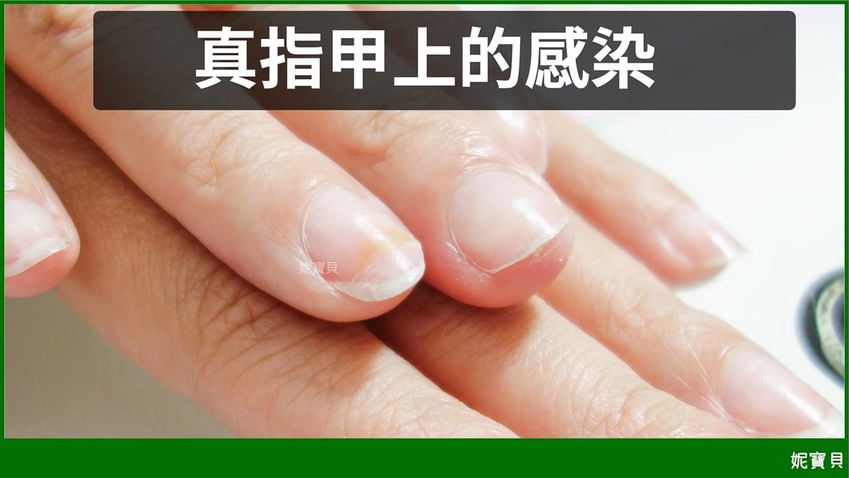 真指甲上的感染