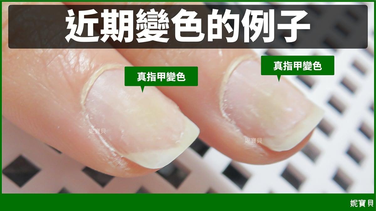 指甲發霉 凝膠變綠的原因狀況與處理方式