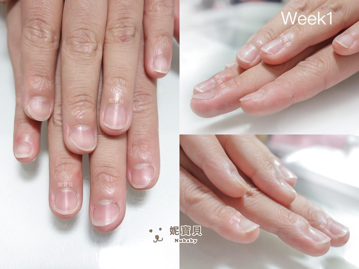 指甲矯正 新竹 指甲像扇子 變修長美甲