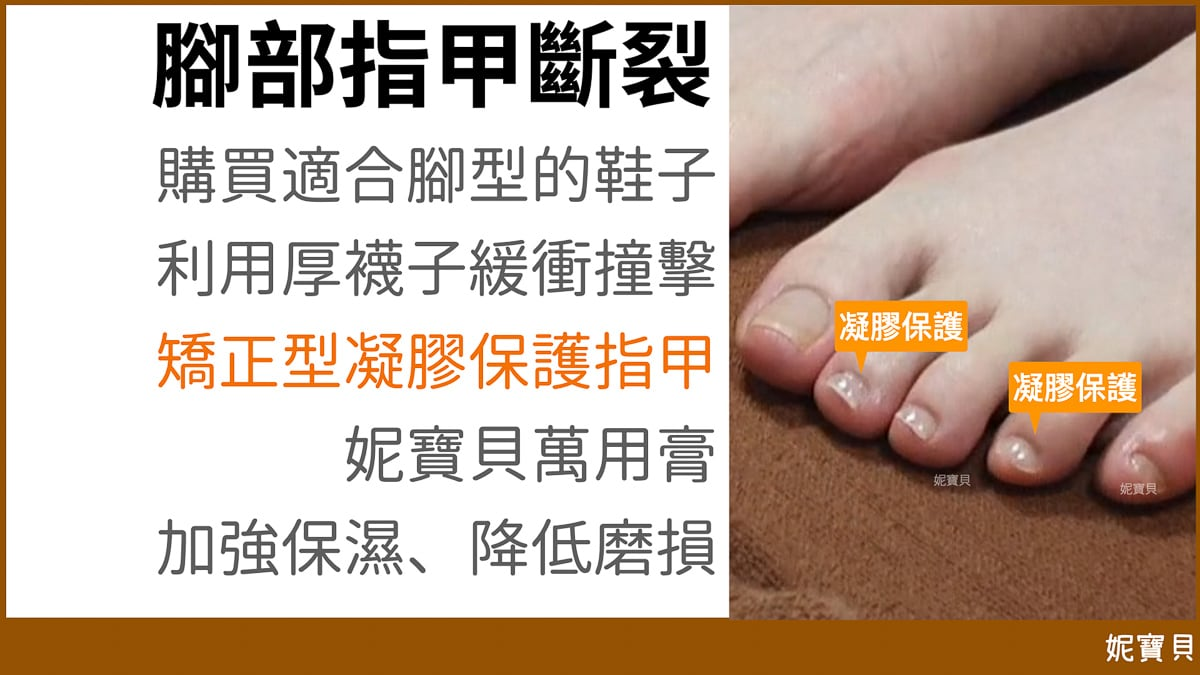 腳部問題指甲 指甲斷裂篇