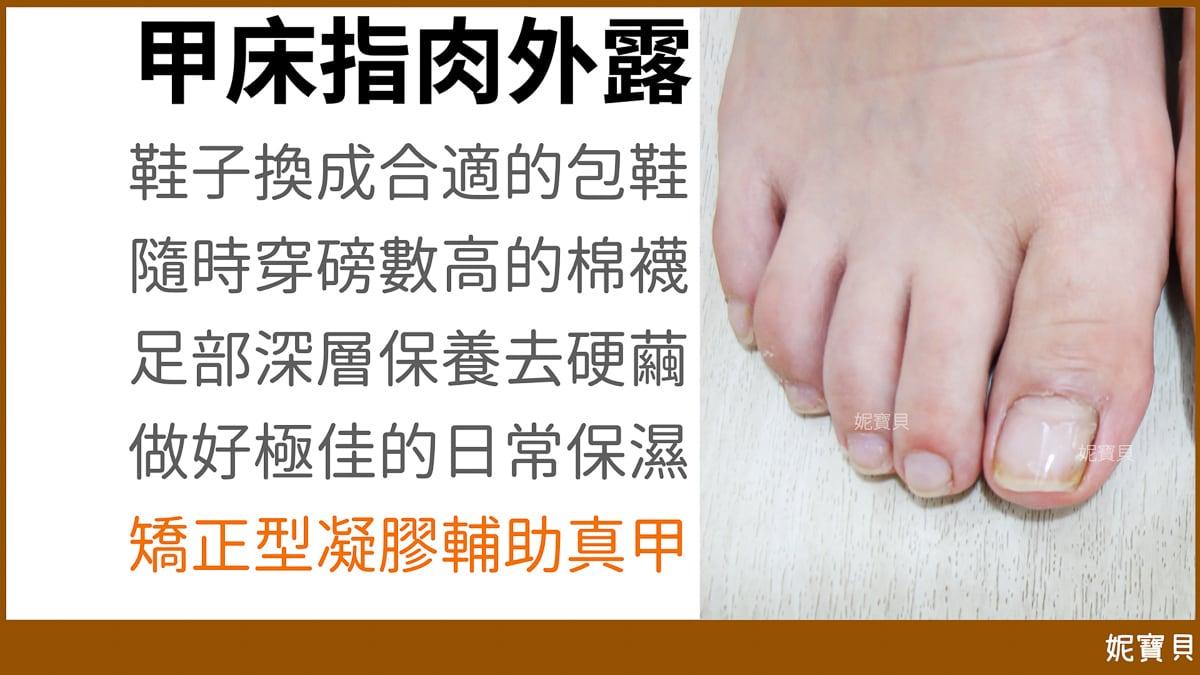 腳部問題指甲 甲床指肉外露篇