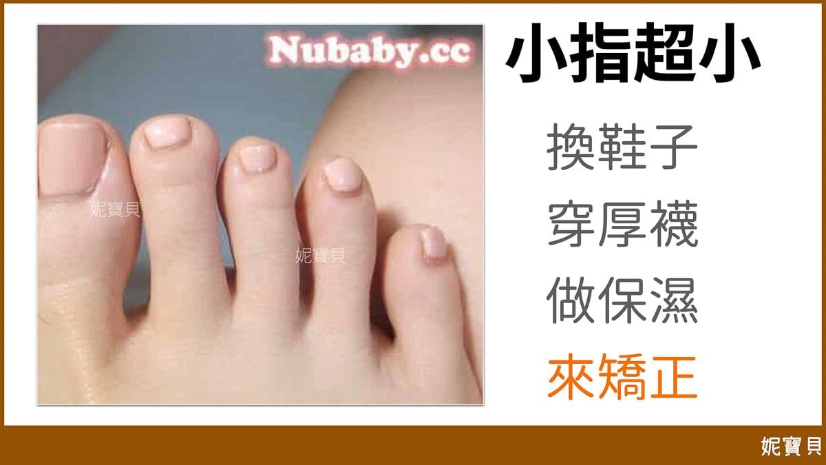腳部問題指甲 小拇指長不出來