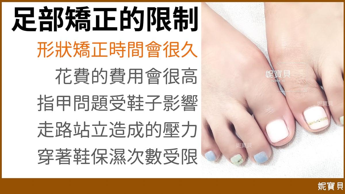 腳部指甲矯正-腳趾甲問題的成因與處