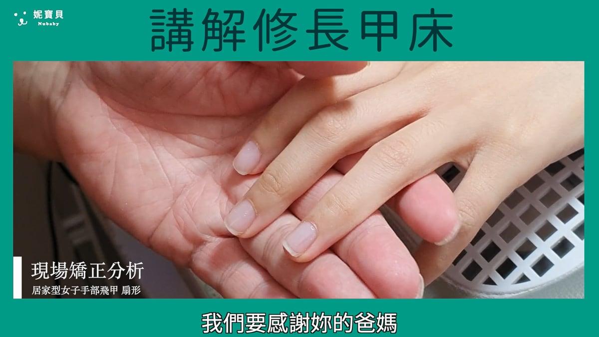 指甲矯正現場 講解甲床比例
