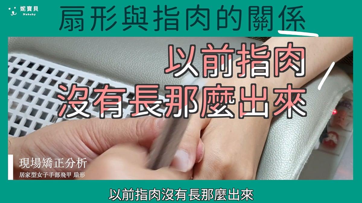 扇形指甲跟指肉腫脹的關係