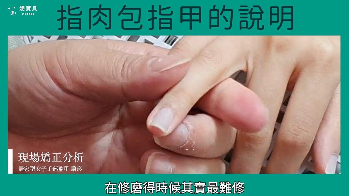 指甲矯正現場 指肉包指甲