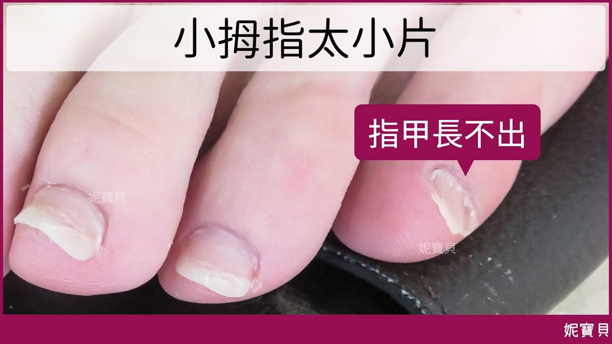 腳部飛甲 指甲軟 甲床萎縮-矯正現場案例