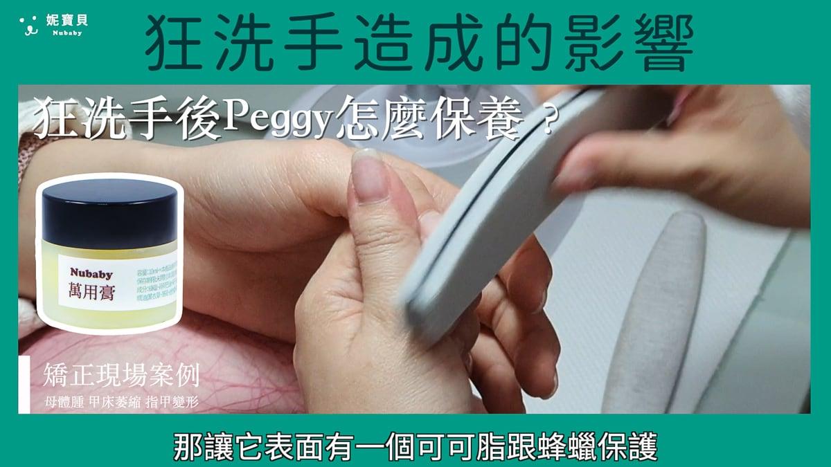 指緣母體紅腫 甲床萎縮 指甲變形-矯正現場案例