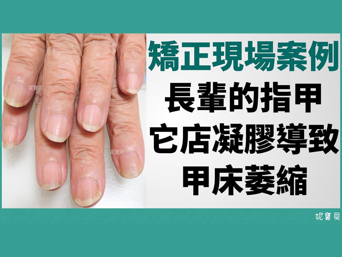 長輩的指甲-它店凝膠導致甲床萎縮-矯正現場案例