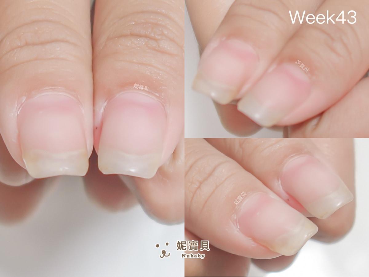 壓力大 摳咬指甲 矯正過程