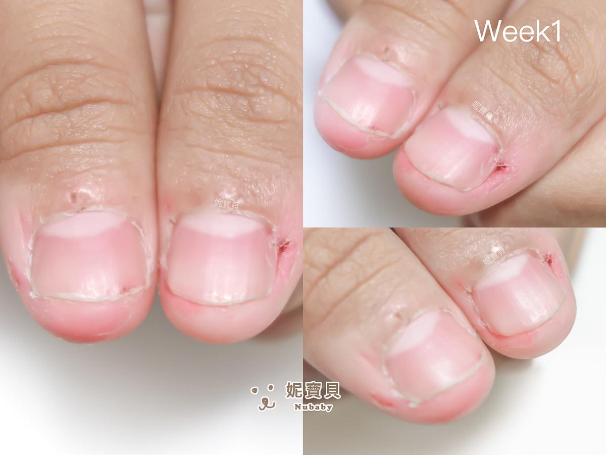 指甲矯正 宜蘭 壓力大 摳咬指甲 矯正過程