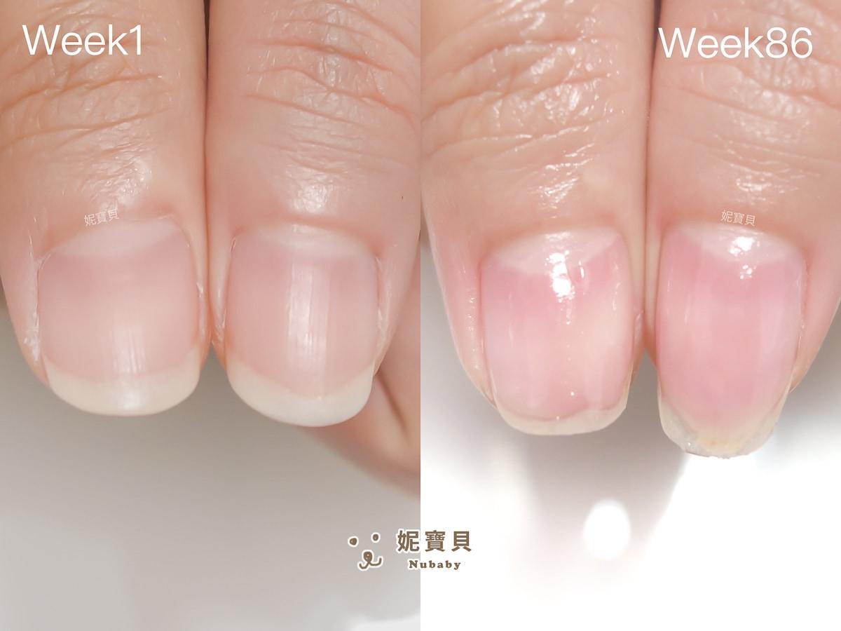 指甲矯正 桃園 扇形不見 粉紅甲床變長