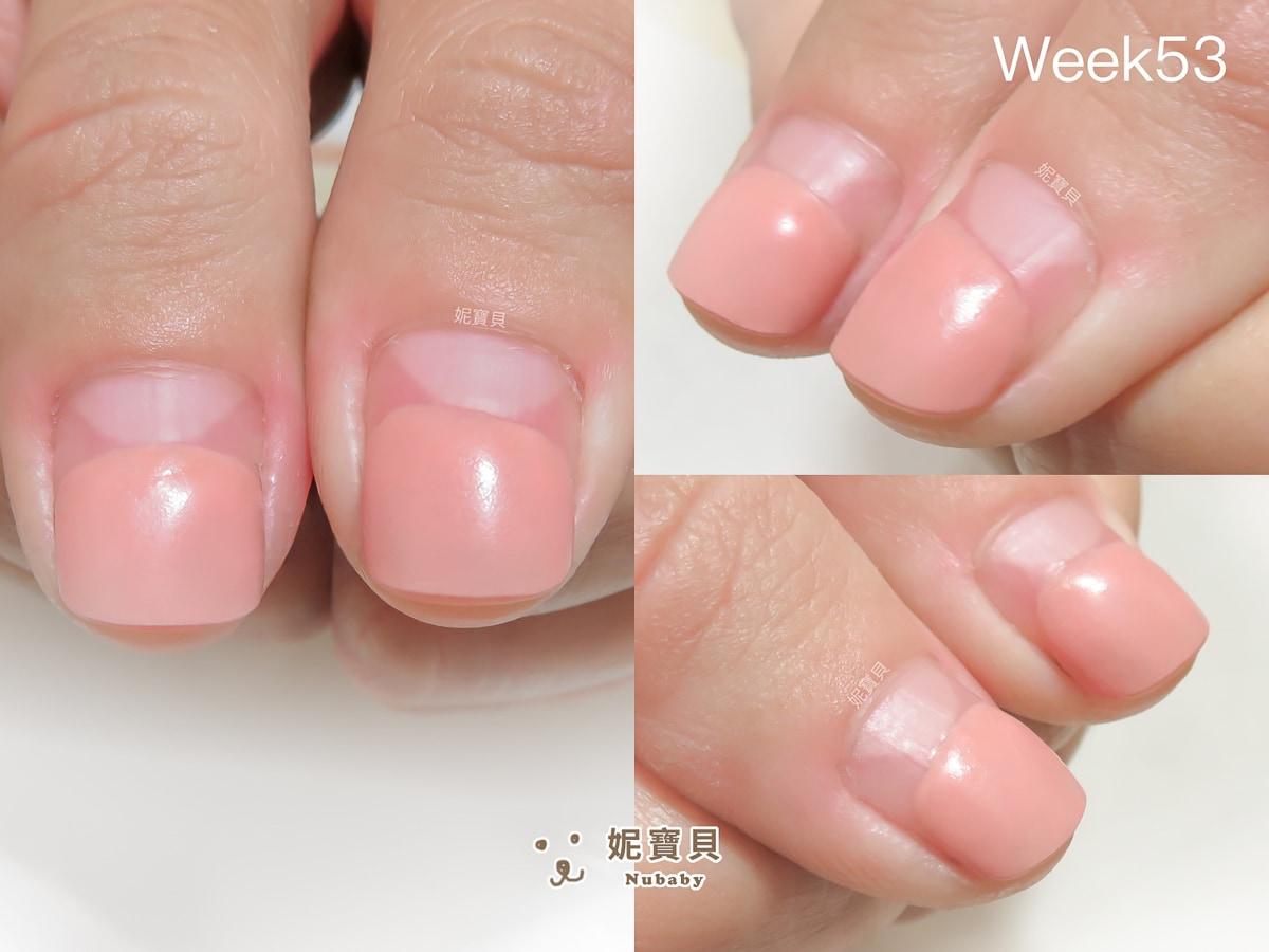指甲矯正 高雄 過敏的指肉 矯正完持續保養