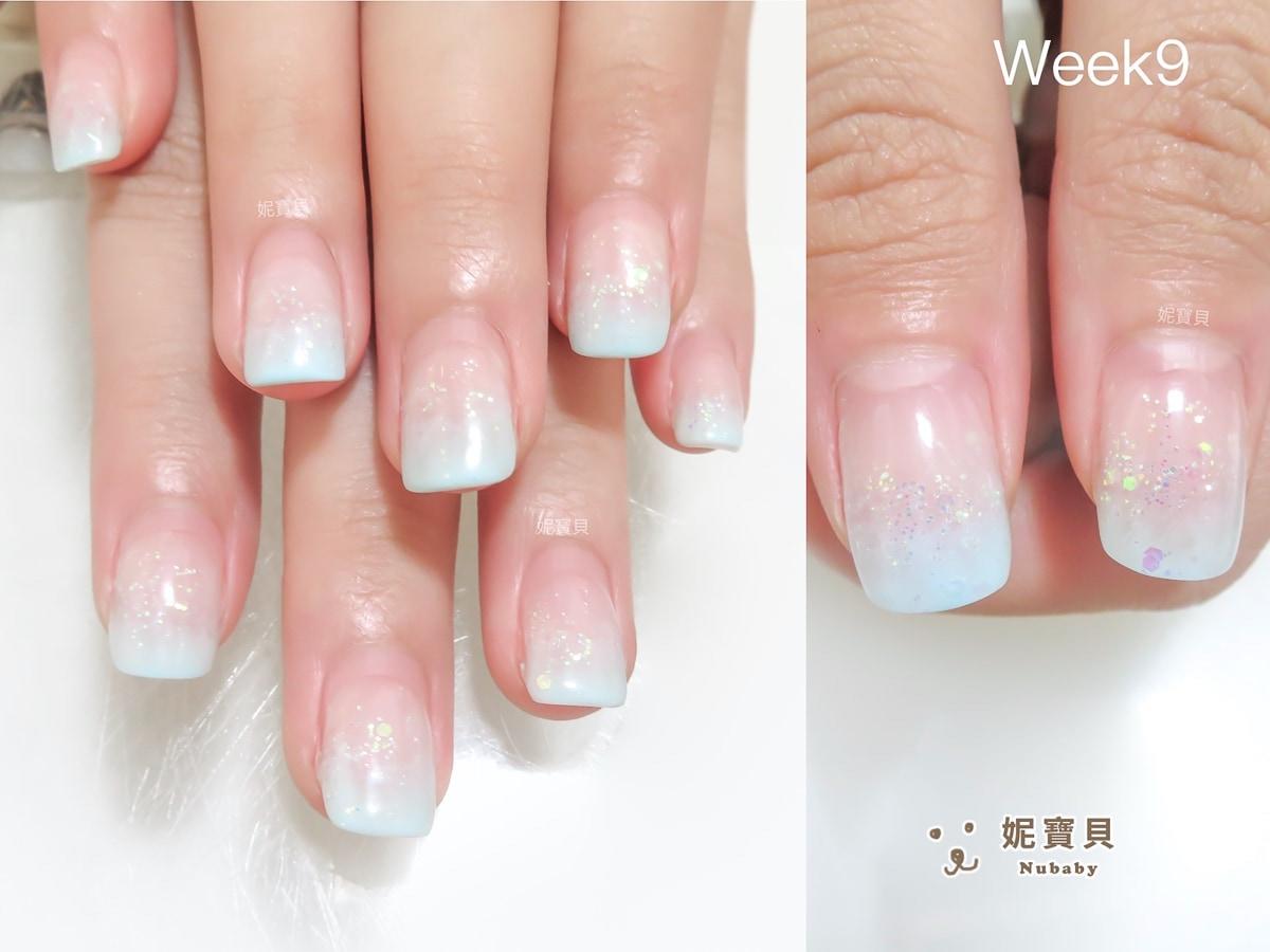 指甲矯正 新竹 摳指甲導致變形 前來矯正