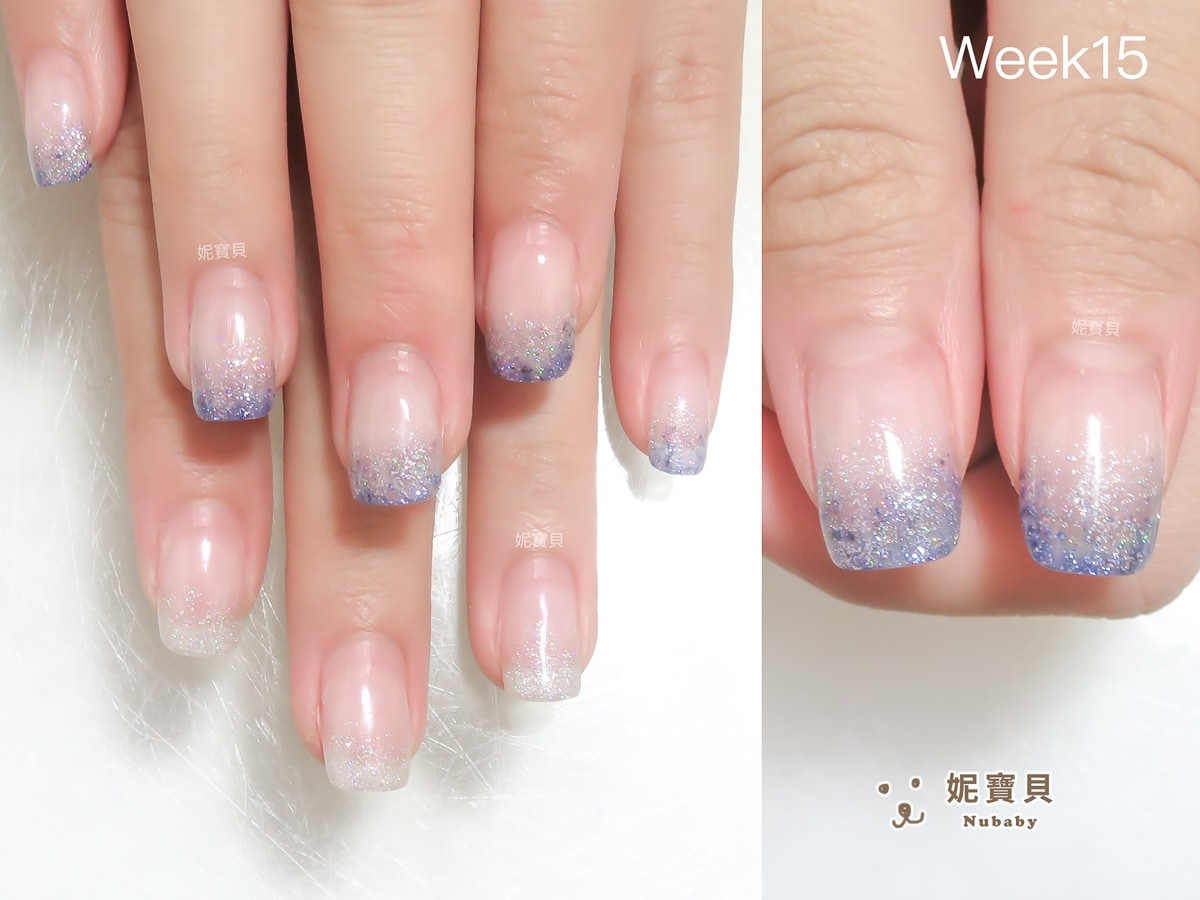 摳指甲導致變形 前來矯正