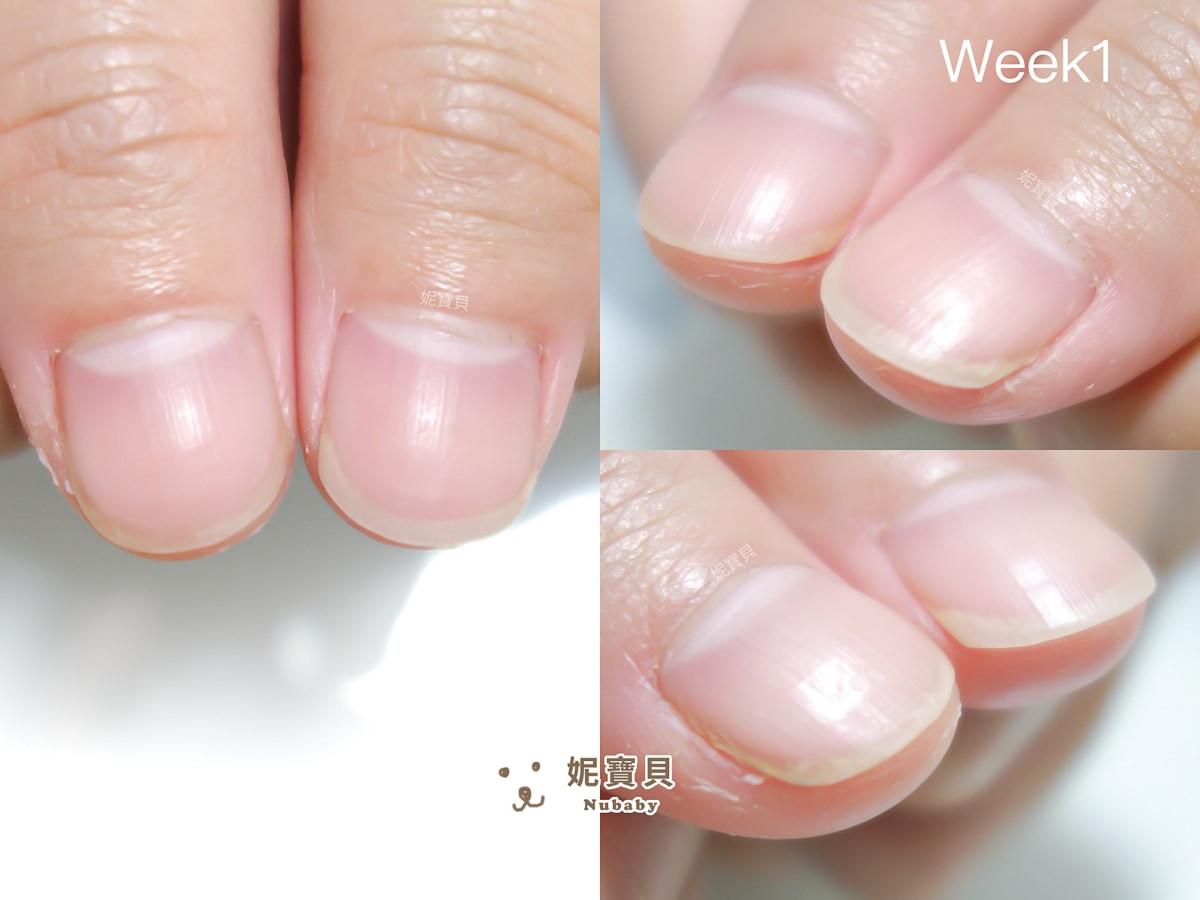 指甲矯正 桃園 常洗手碰水 服務業的扇型指甲矯正