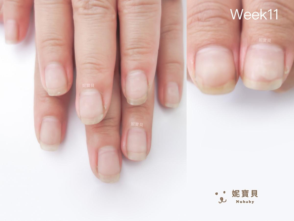常洗手碰水 服務業的扇型指甲矯正