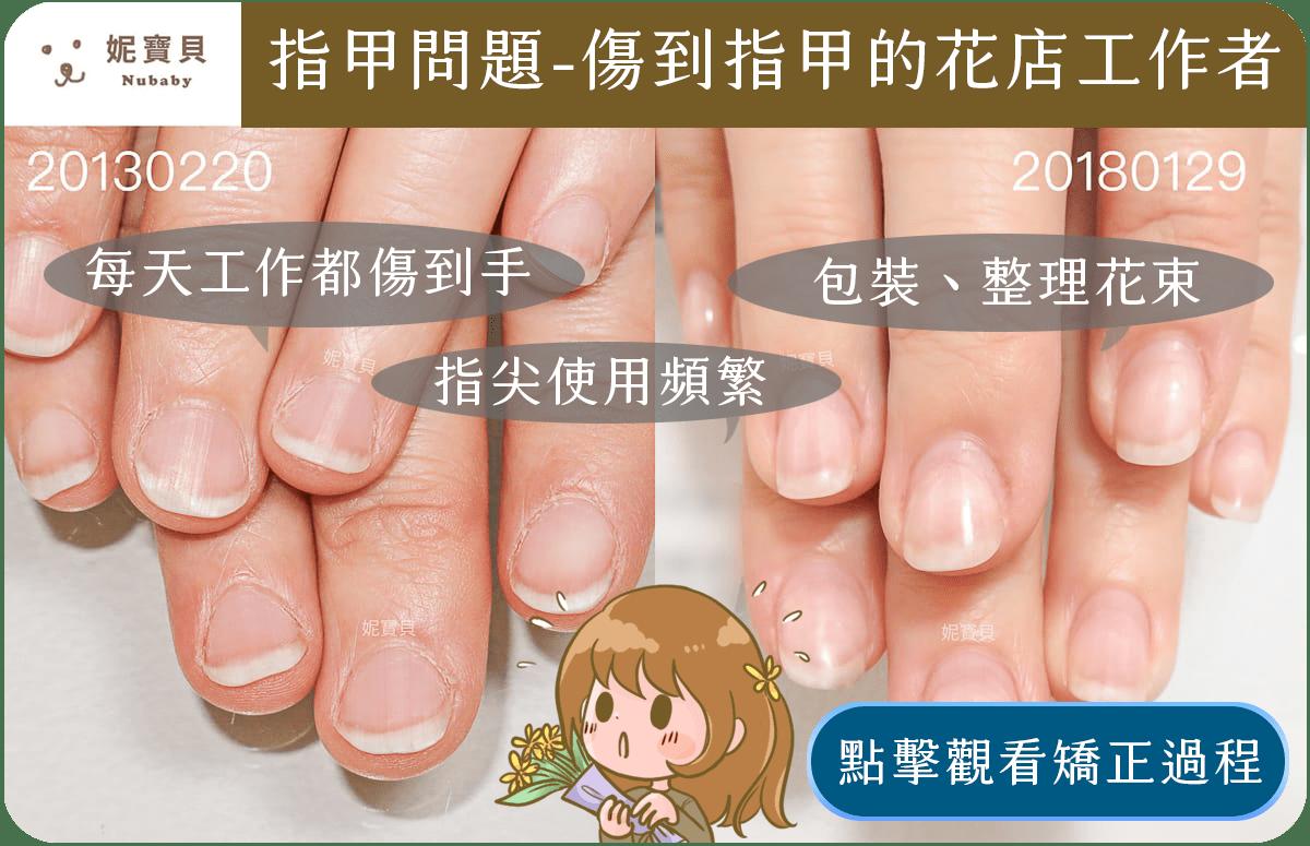 妮寶貝指甲 指甲矯正