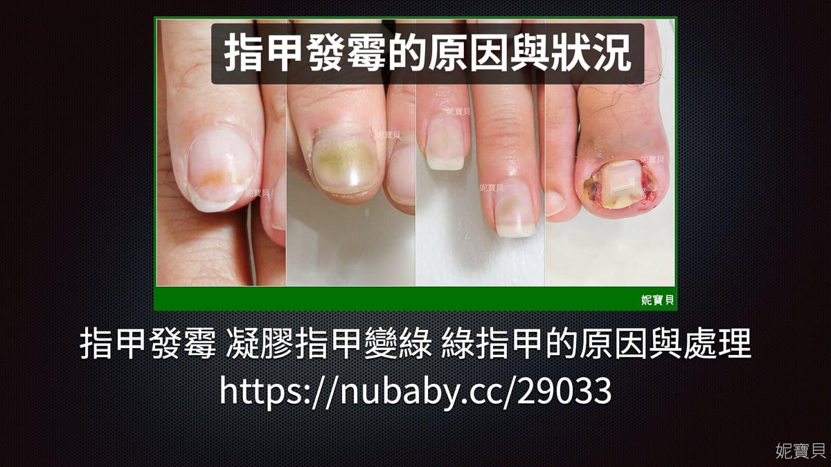不適合做凝膠指甲-常見症狀 灰指甲 發霉 甲溝炎 黑甲症