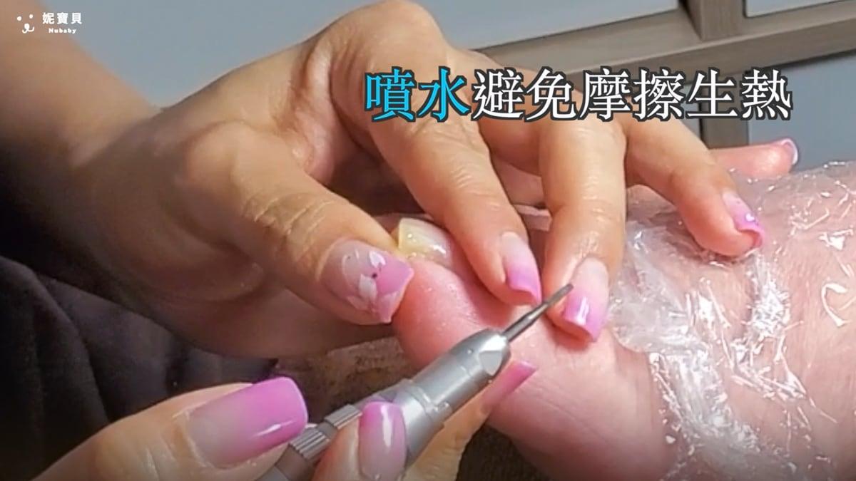 崁甲又厚繭 敏感濕疹皮膚 足部深層保養後會怎樣