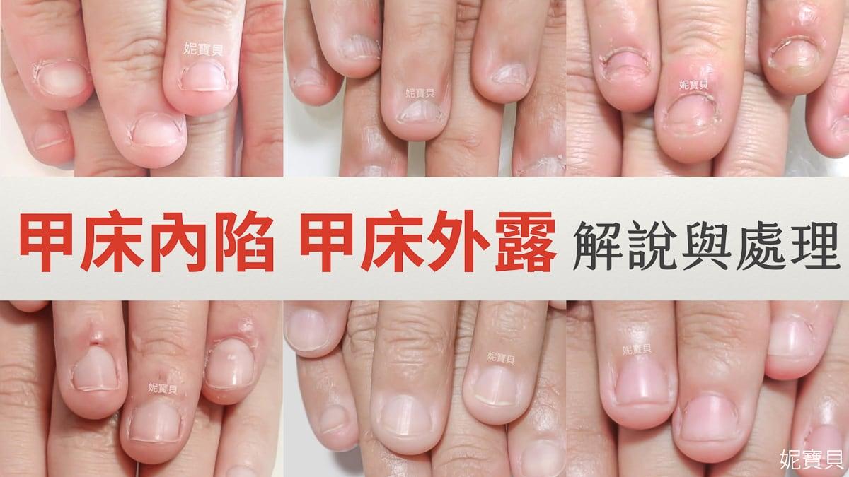 甲床內陷 甲床外露 指肉外露-嚴重甲床變形的處理