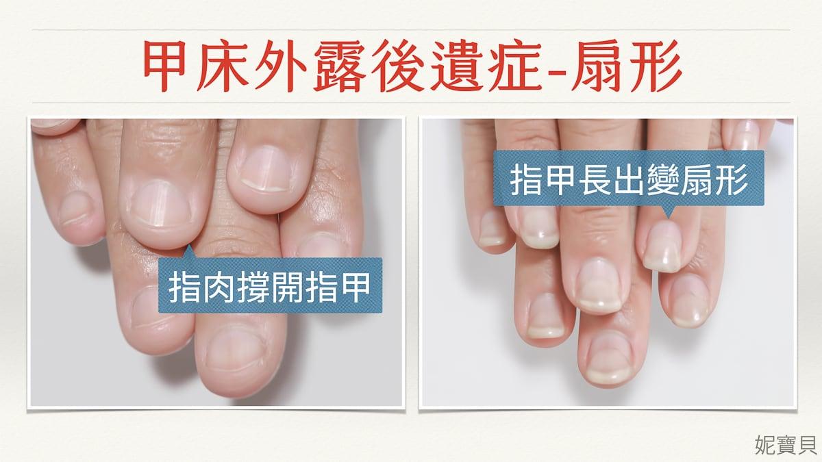 甲床外露 甲床內陷 指肉外露-嚴重甲床變形的處理