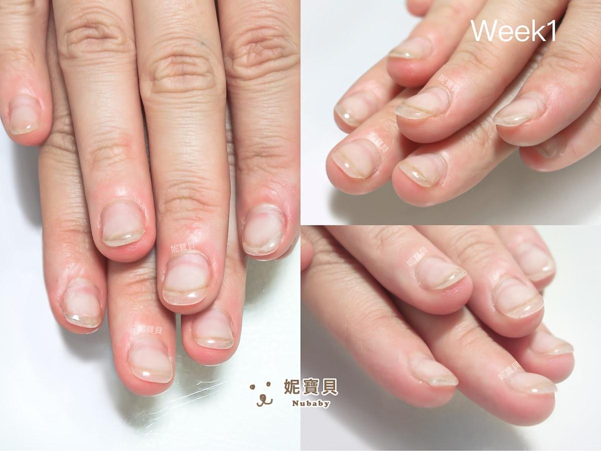 指甲矯正 基隆 矯正養甲床 甲床變長