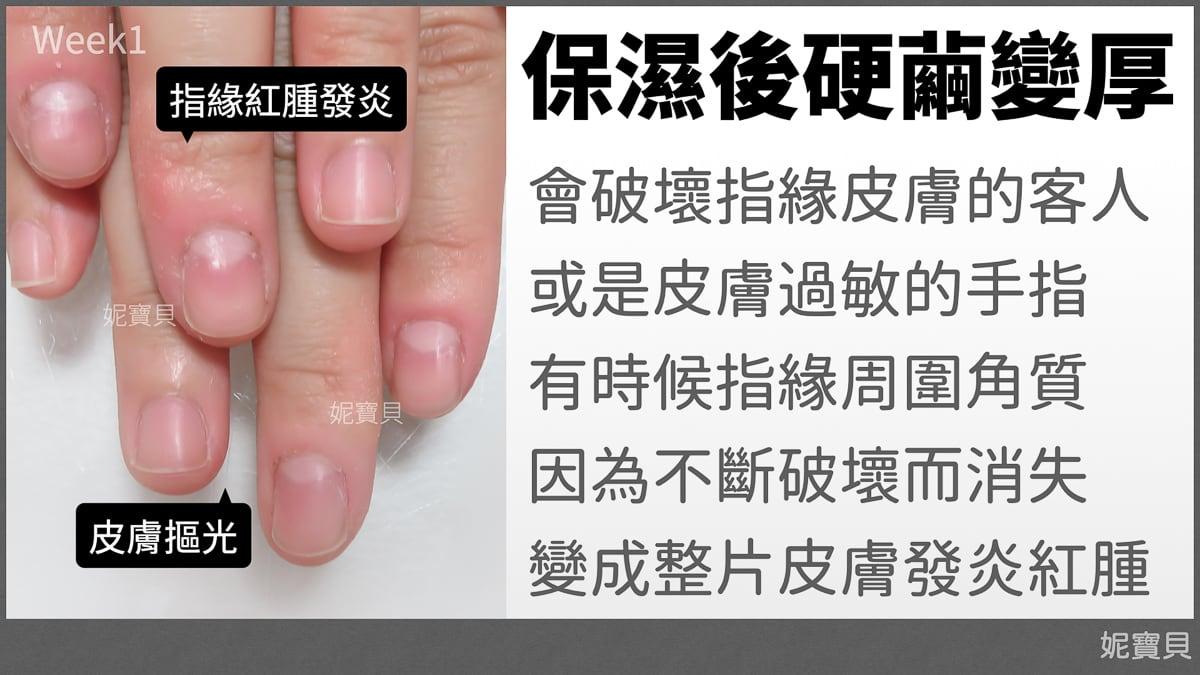 指甲異常 指緣皮膚保濕反而變厚