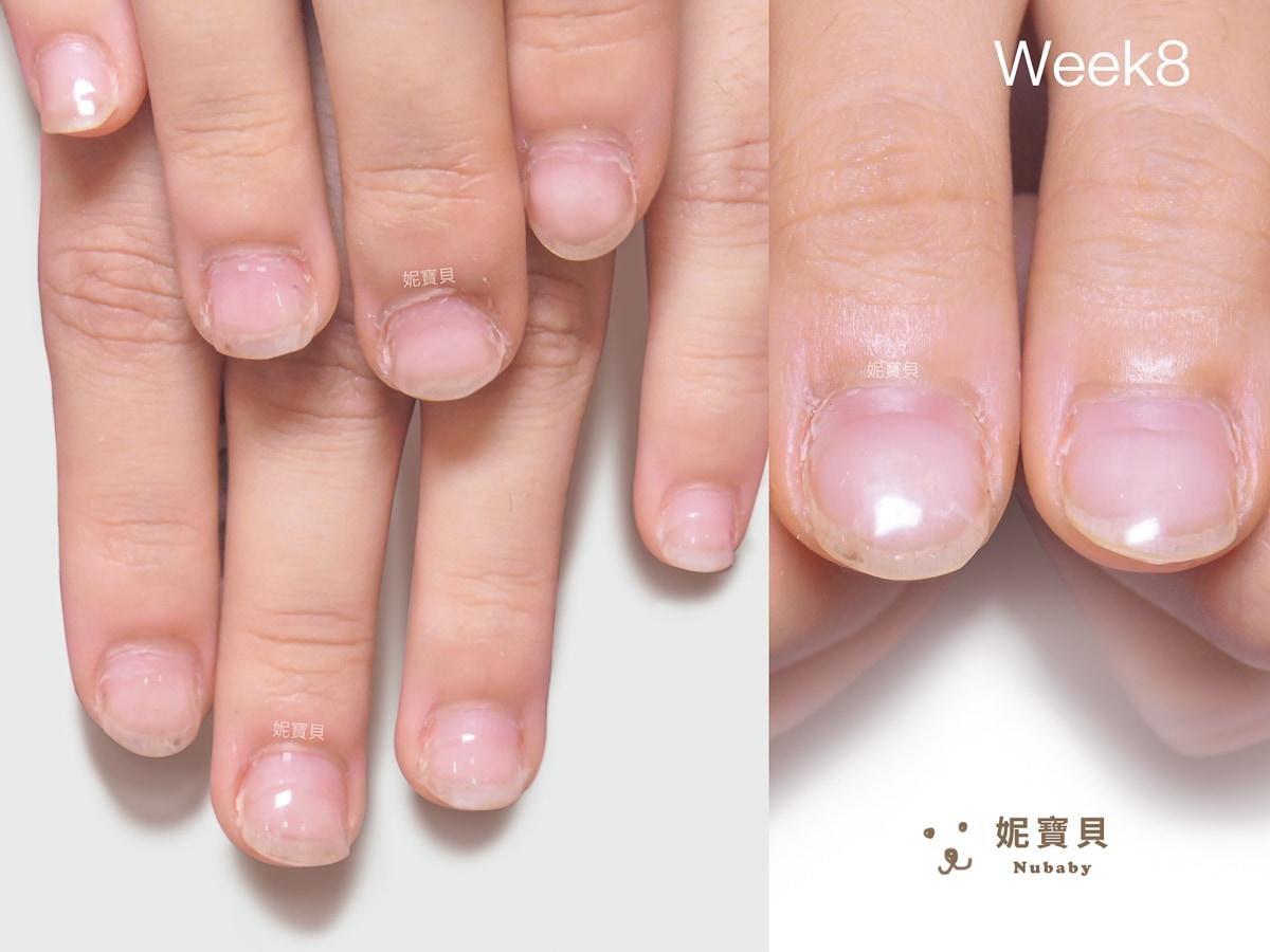 修復甲床 長期摳咬指甲 22週養出甲床與指甲