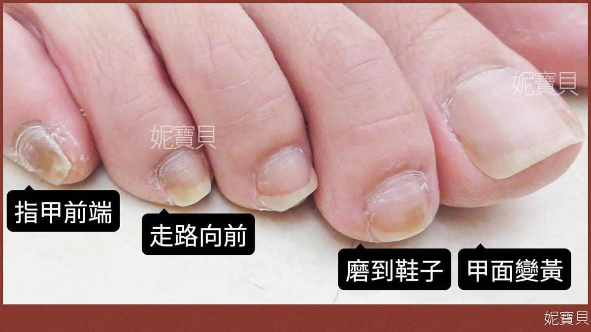 腳部指甲狀況