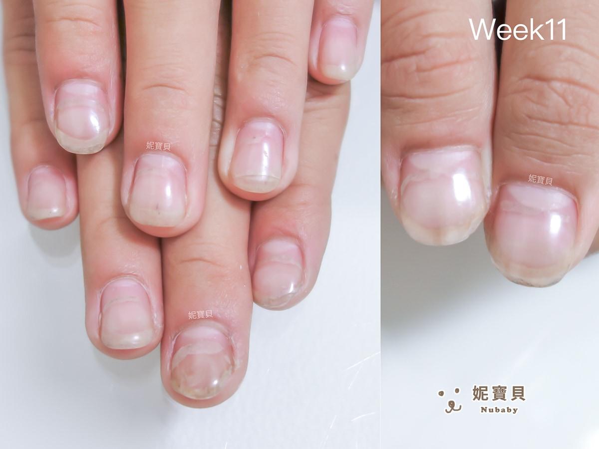 養甲護甲 指甲重新長 男大生 從沒指甲到有指甲