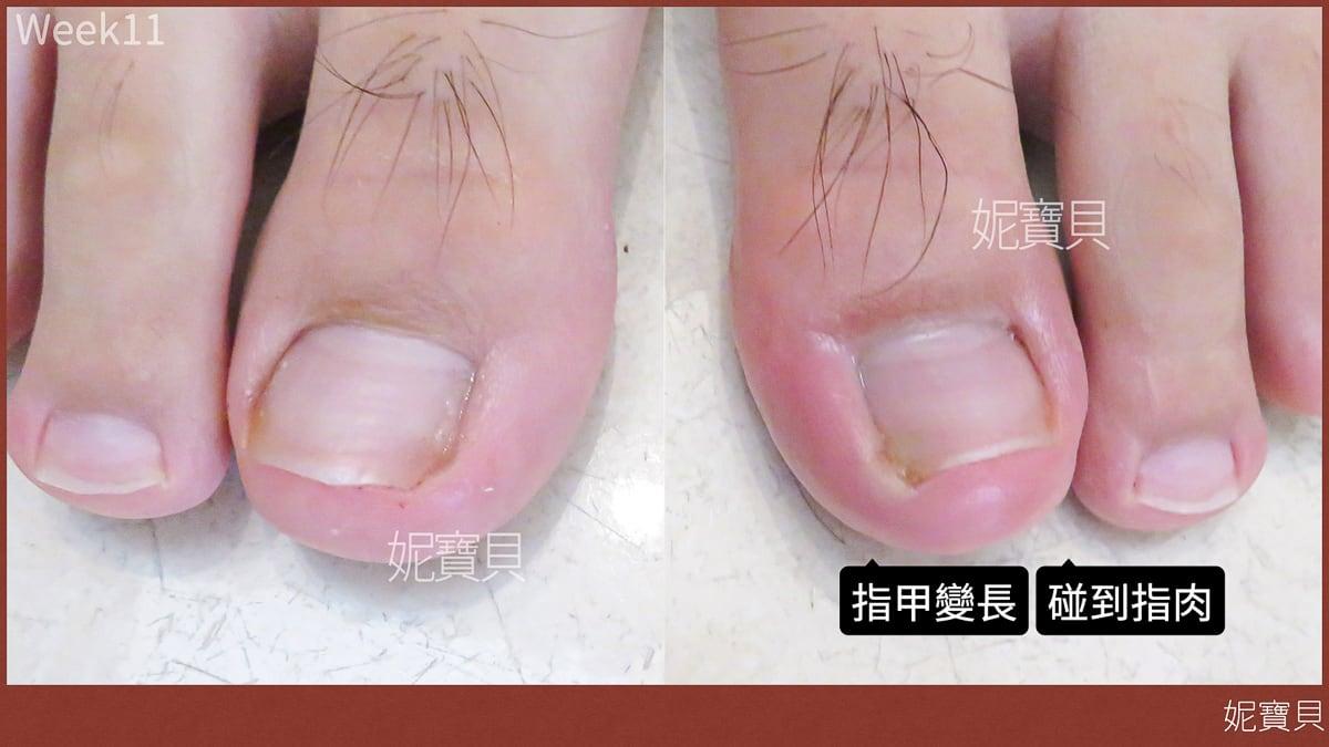 腳部崁甲矯正 凍甲處理紀錄 腳指甲矯正 足部深層保養