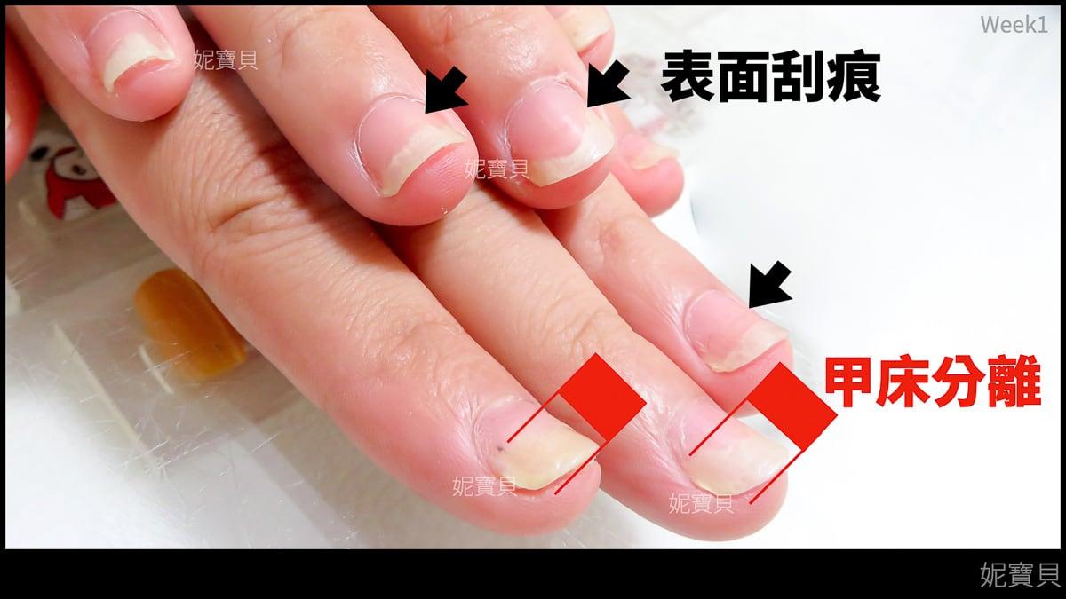 甲床分離 甲床重建 解說-矯正與修磨現場 矯正中的客戶指甲
