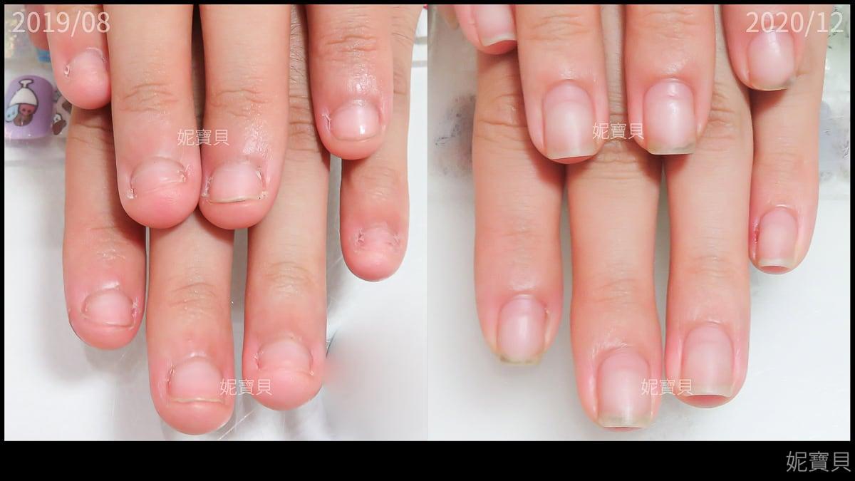 指溝炎 矯正指甲的細節 甲溝炎真實案例