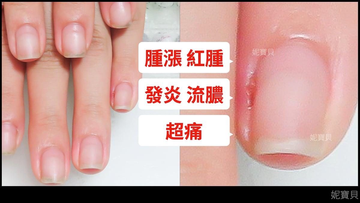 指溝炎 甲溝炎 能不能做凝膠指甲? 特殊狀況做指甲示範