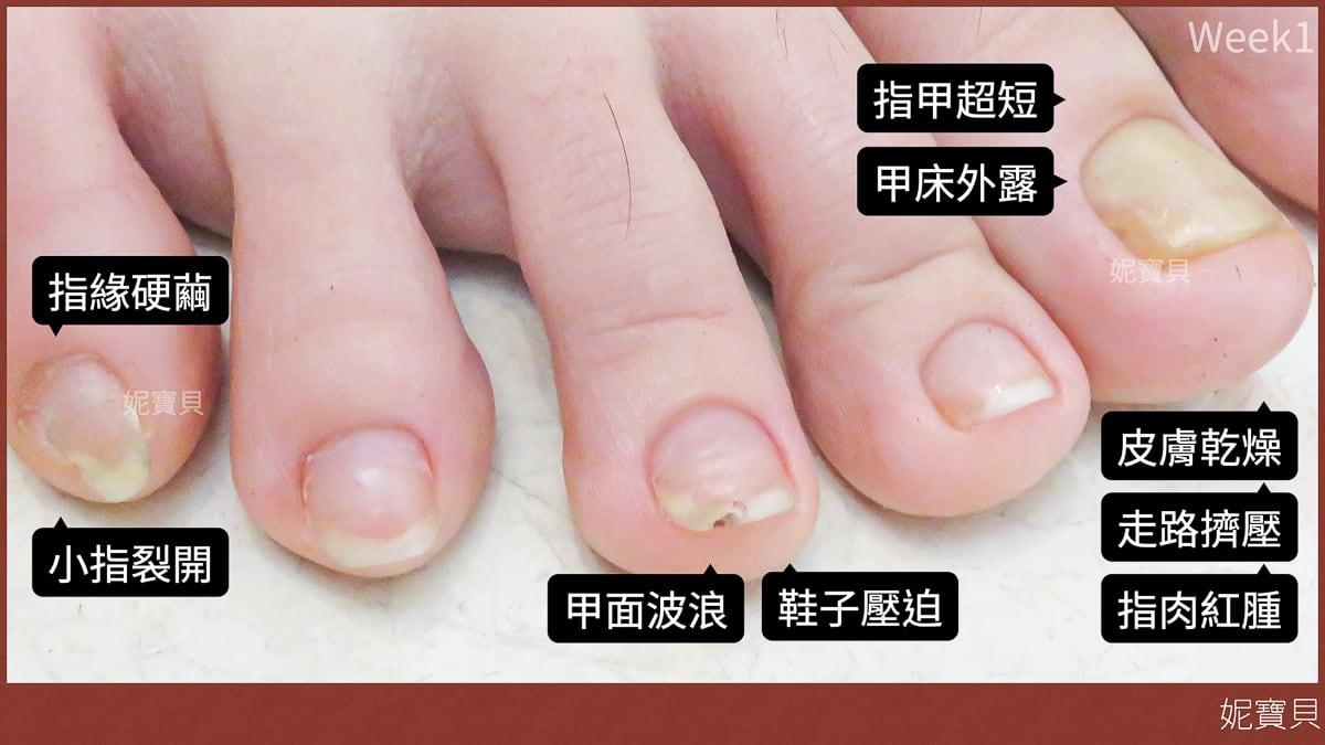 腳部指甲常見問題
