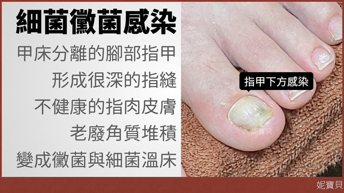 腳指甲矯正的風險 指甲發霉 瘀青 細菌感染