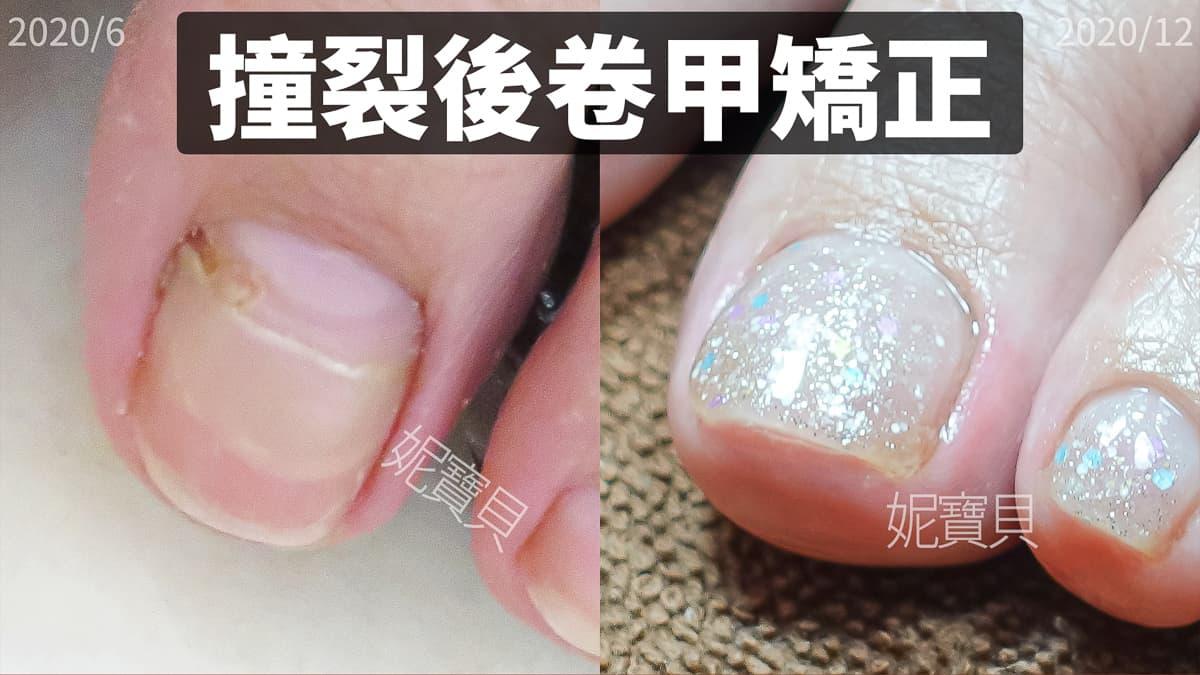 腳趾甲撞裂後卷甲調整-腳部趾甲折到撞到 足部指甲矯正