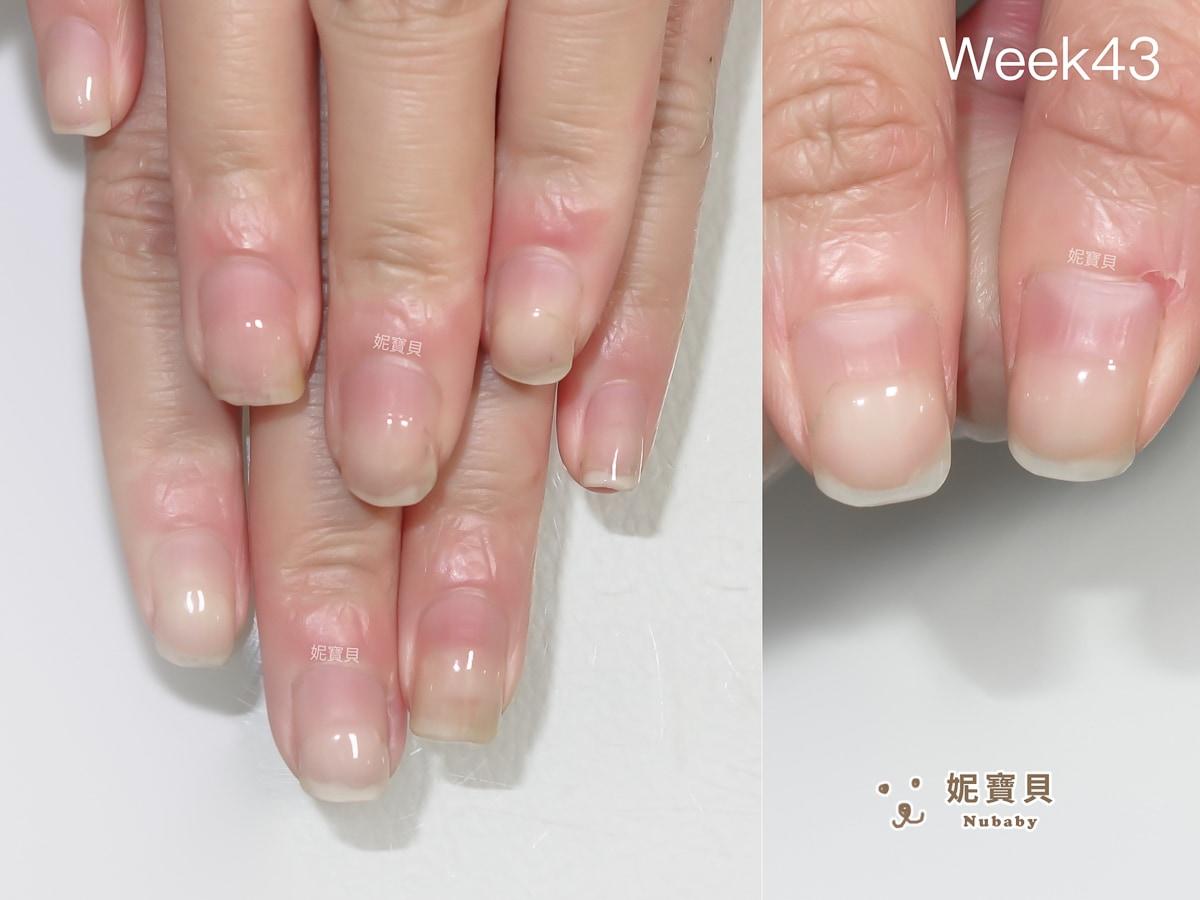 嚴重摳咬指甲 凝膠保護後指甲重長